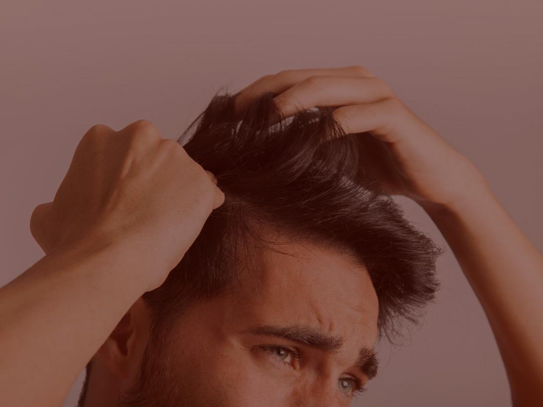 Tratamiento caida cabello hombres
